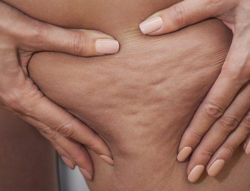 Cellulite – Was hilft wirklich? Zwei Ärzte klären auf.